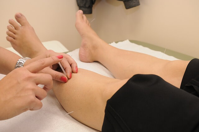 Acupuncture oncologie
